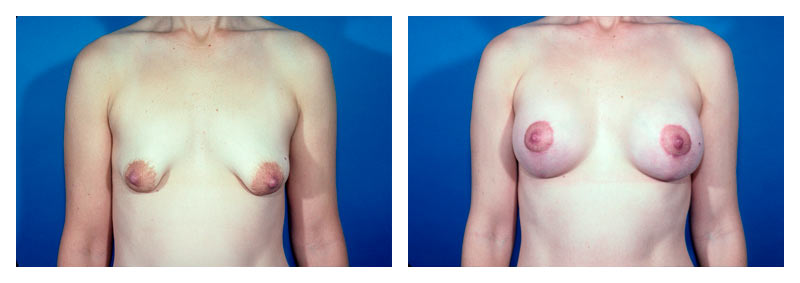 Case 1 – Breast Aug with lift