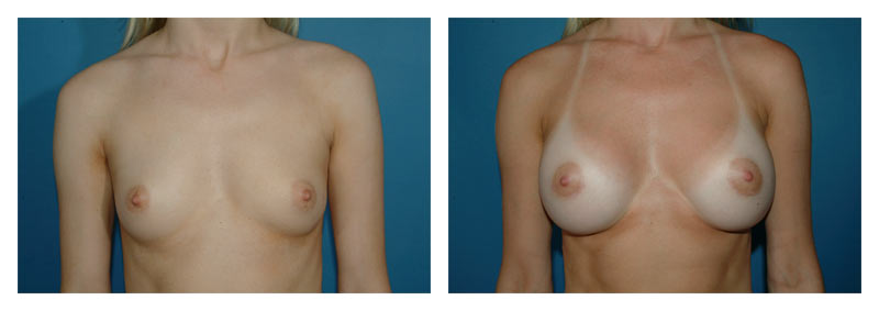Case 1 – Breast Augmentation
