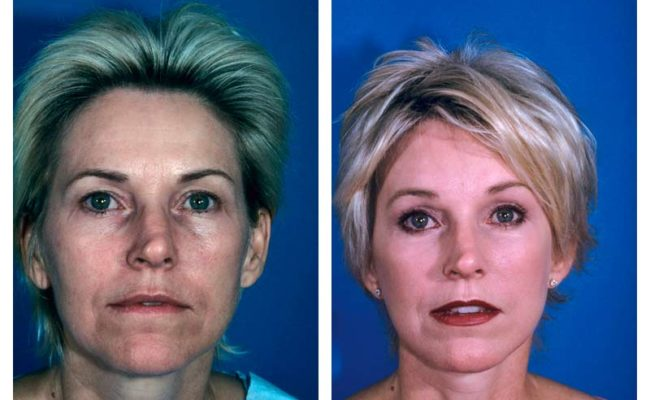 Case-1-Facelift_Neck-Surgery-1-new