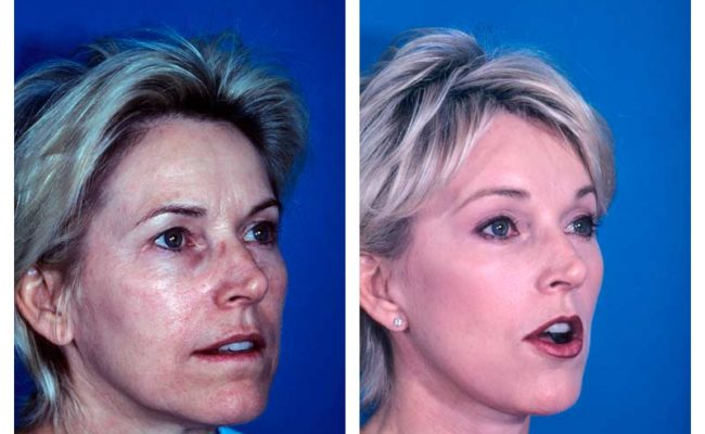 Case-1-Facelift_Neck-Surgery-2-new