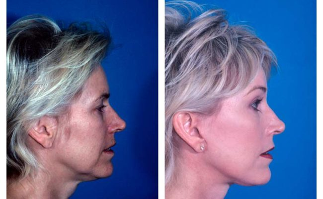 Case-1-Facelift_Neck-Surgery-3-new