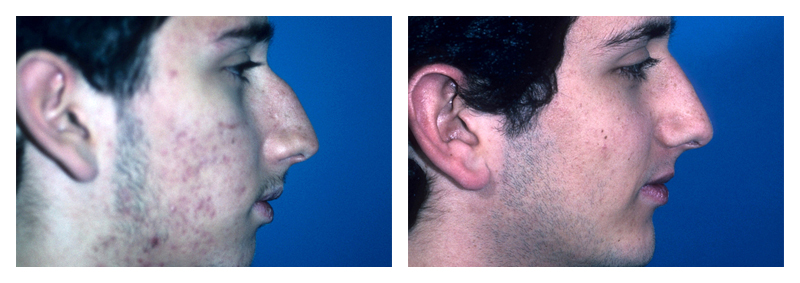 Case 1 – Chin Implant Augmentation