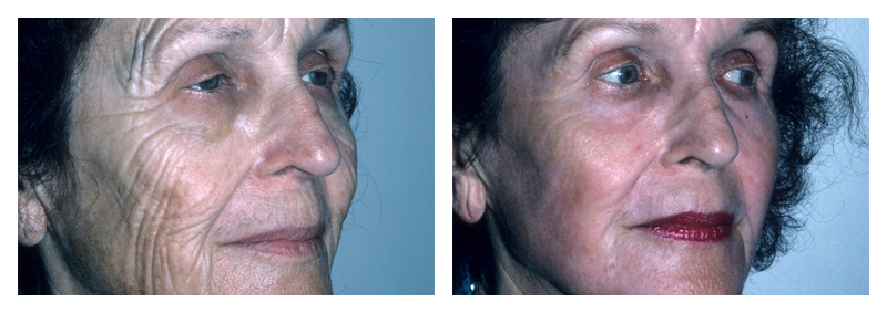 Case 1 – Laser Facial Skin Resurfacing