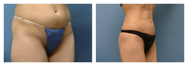 Case 1 – Liposculpture