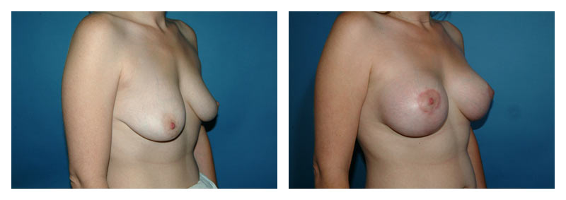 Case-2-Breast-Aug-with-lift-2-new