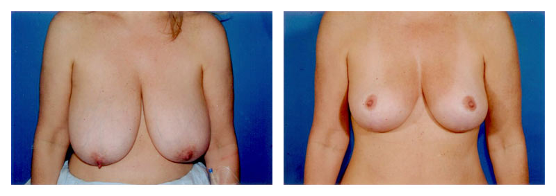 Case 2 – Breast Reduction