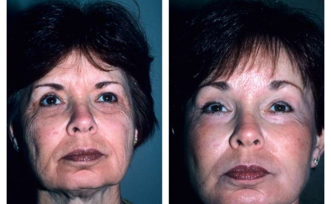 Case-2-Facelift_Neck-Surgery-1-new