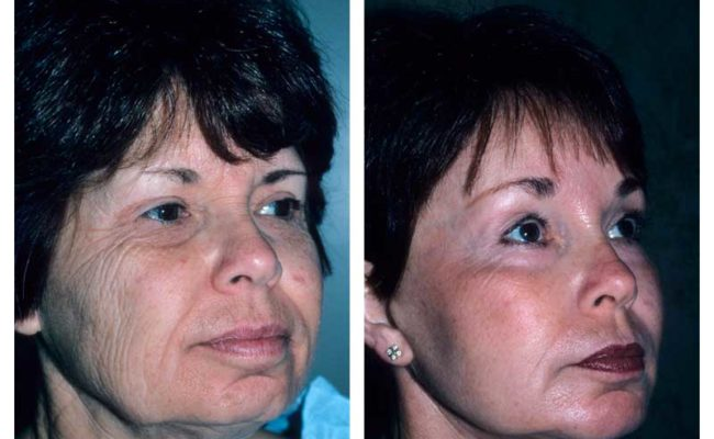 Case-2-Facelift_Neck-Surgery-2-new