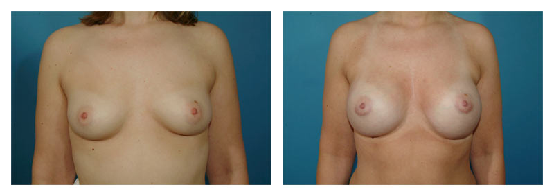 Case 3 – Breast Augmentation