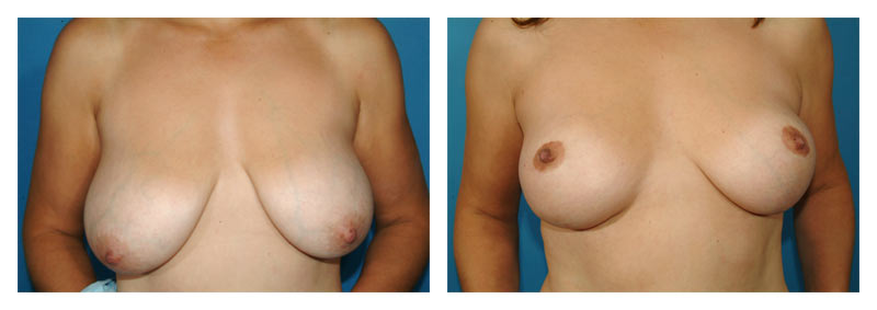 Case 3 – Breast Lift without Implants