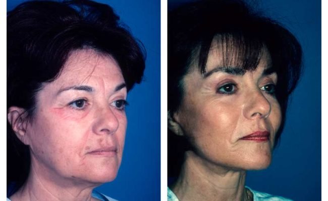 Case-3-Facelift_Neck-Surgery-1-new