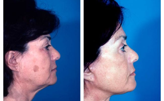 Case-3-Facelift_Neck-Surgery-2-new