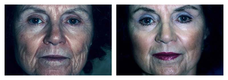 Case 3 – Laser Facial Skin Resurfacing