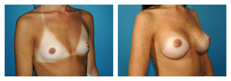 Case-4-Breast-Augmentation-2-new