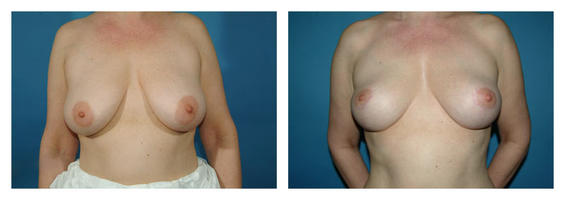 Case 4 – Breast Lift without Implants