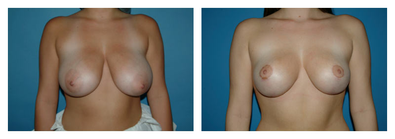 Case 4 – Breast Reduction