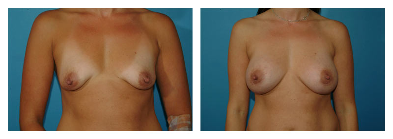 Case 6 – Breast Augmentation