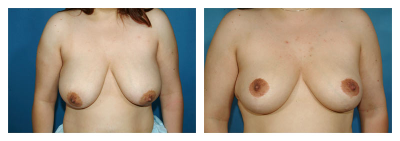 Case 6 – Breast Lift without Implants