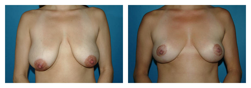 Case 7 – Breast Lift without Implants
