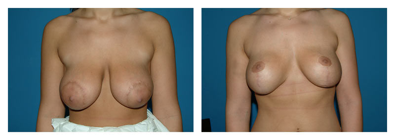 Case 2 – Breast Revision