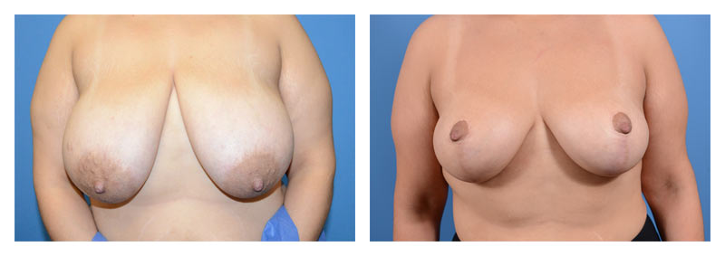 Case 8 – Breast Reduction