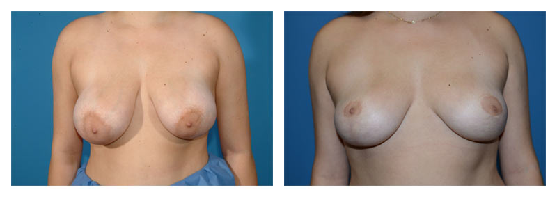 Case 9 – Breast Reduction