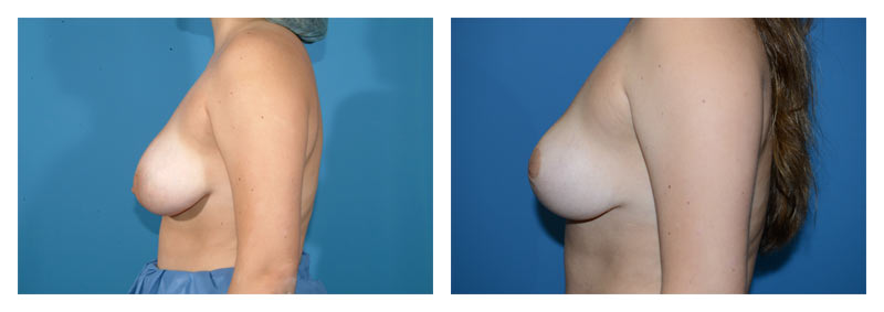 Case 11 – Breast Reduction2