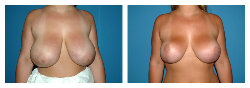 Case 10 – Breast Reduction