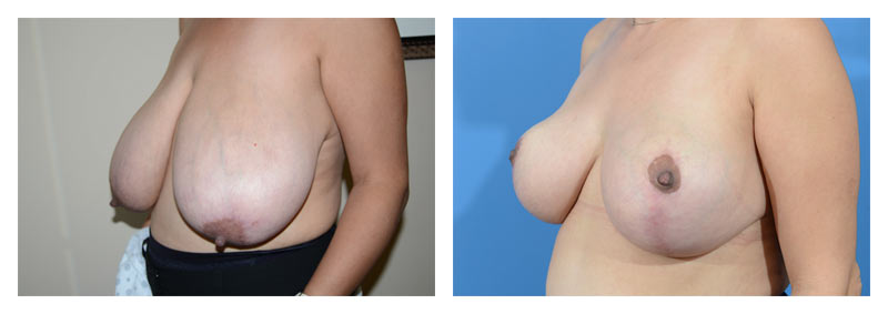 Case 13 – Breast Reduction2