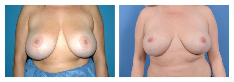 Case 12 – Breast Reduction