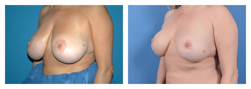 Case 14 – Breast Reduction3