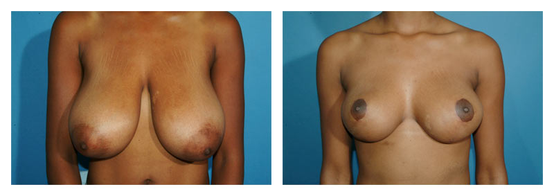 Case 1 – Breast Reduction