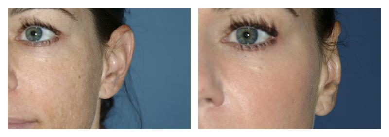 Case 1 – Ear Surgery – 2 Preview1
