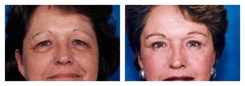 Case 1 – Eyelid surgery