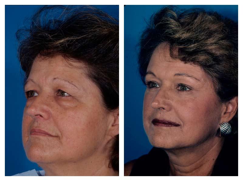 Case-1-Eyelid-surgery-2-new