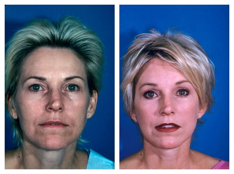 Case-1-Facelift_Neck-Surgery-1-new