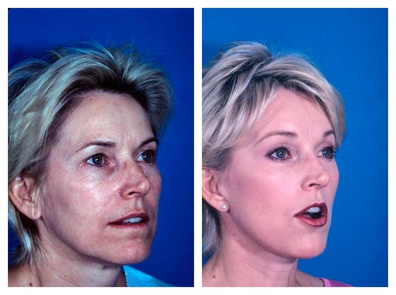 Case-1-Facelift_Neck-Surgery-2-new