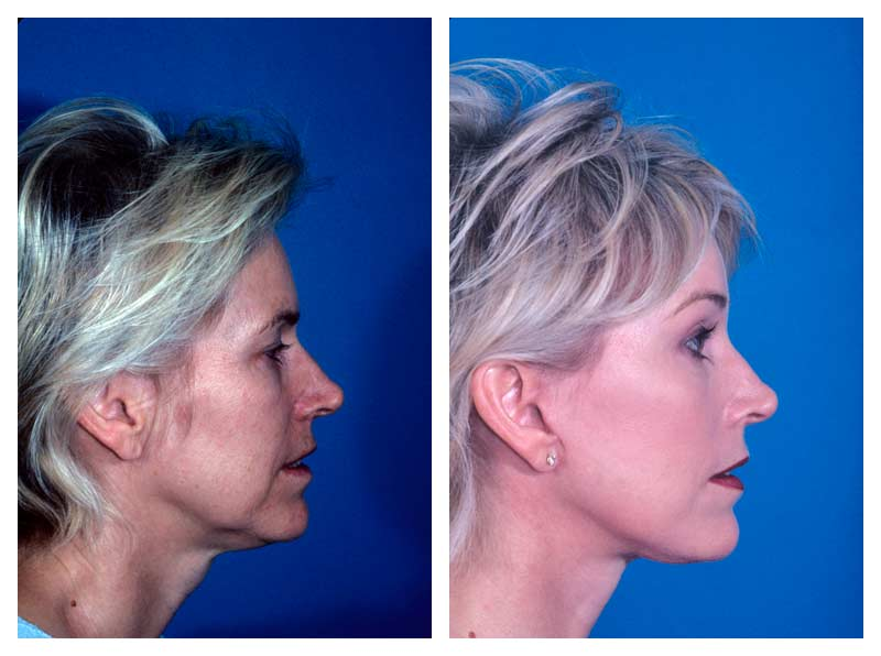 Case-1-Facelift_Neck-Surgery-3-new