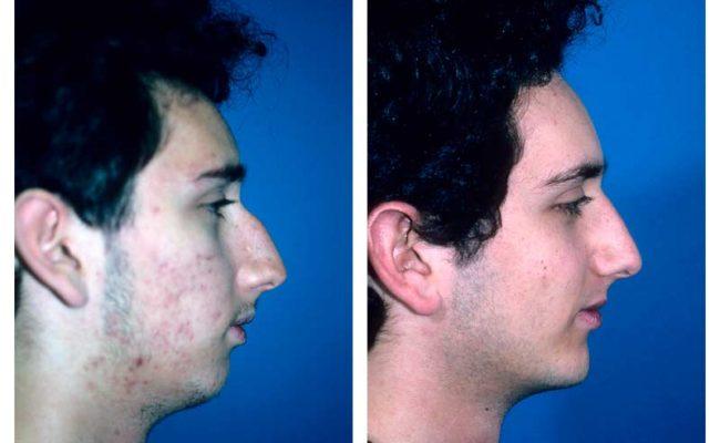 Case-1-Facial-Contouring-news