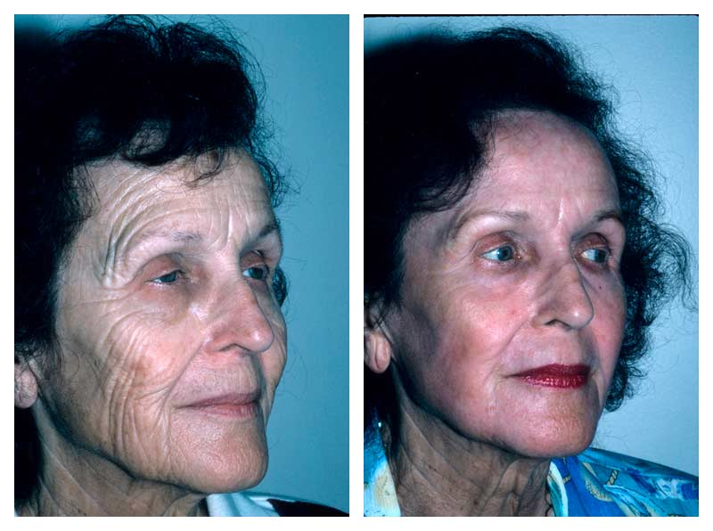 Case-1-Laser-Facial-Surgery-new