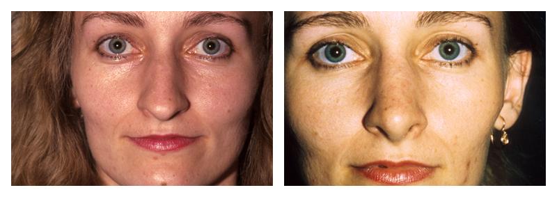 Case 1 – Nose Surgery