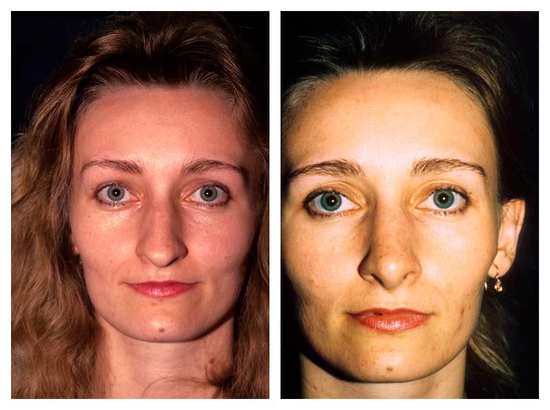 Case-1-Nose-Surgery-1-new