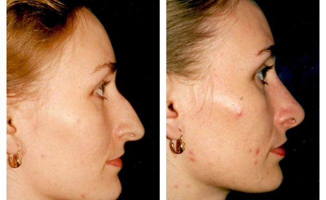 Case-1-Nose-Surgery-2-new