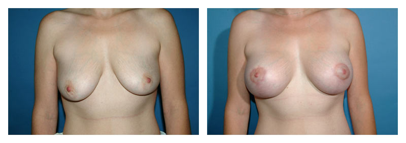 Case 2 – Breast Aug with lift