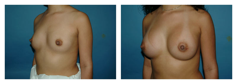 Case-2-Breast-Augmentation-3-new
