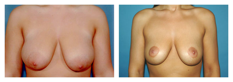 Case 2 – Breast Lift without Implants