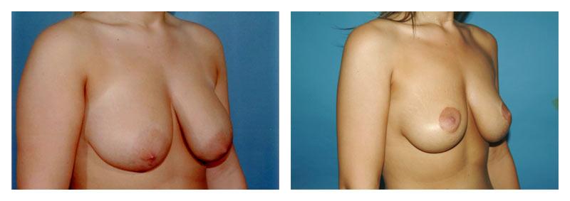 Case-2-Breast-Lift-2-new