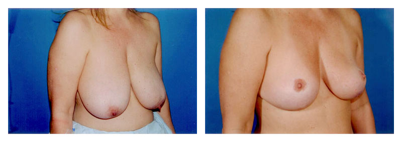 Case-2-Breast-Reduction-2-new