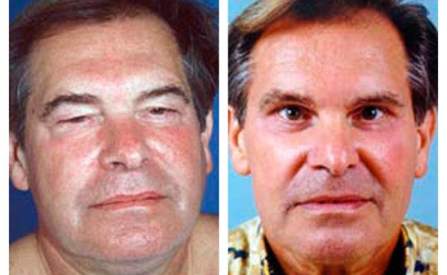 Case-2-Eyelid-surgery-1-new