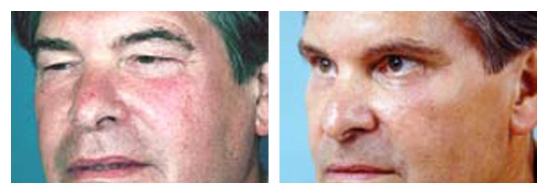 Case 2 – Eyelid surgery